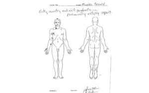 The autopsy drawing of Michael Brown's body after he was gunned down by police in Ferguson, Missouri.
