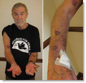 Ray McGovern displaying the aftermath of his arrest during a speech by Secretary of State Hillary Clinton on Feb. 15, 2011.