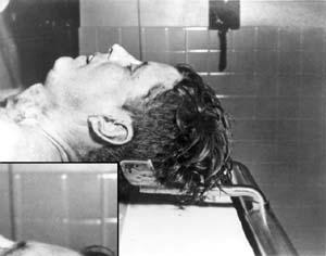 Autopsy photo of President John F. Kennedy.