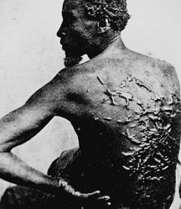 A photograph showing the whipping scars on the back of an African-American slave.